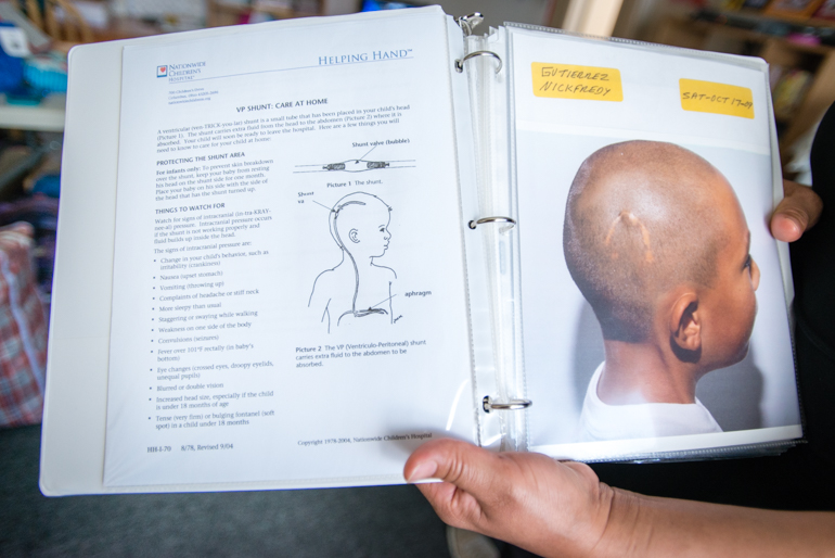 Mother of Nickfredy Gutierrez, Mercedes Maldonado, holds a binder that shows an illustration of the ventricular shunt next to a photo of Gutierrez in 2009. The shunt runs from his head to his abdomen and is used to relieve pressure from his brain caused by fluid accumulation (Photo by Heidi de Marco/KHN).