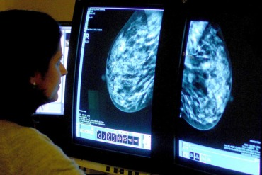 A consultant analyzes a mammogram in this file photo. (Photo by Rui Vieira/PA Wire for AP)
