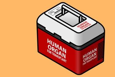 organ transplant_770