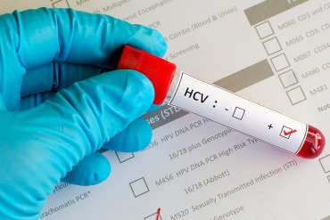 Blood sample with hepatitis C virus (HCV) positive