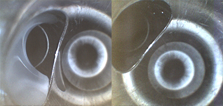 Shown on the left, whitish fluid found in the suction port of a pediatric colonoscope. The fluid contains simethicone, an ingredient in infant gas relief drops. On the right, the same scope is shown after the fluid was removed. (Courtesy of Ofstead & Associates Inc., American Journal of Infection Control)