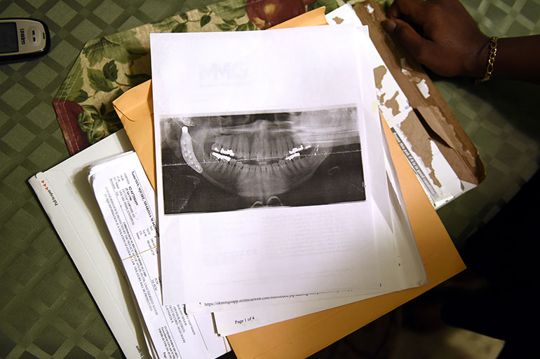 A jaw x-ray from one of Sharissa Derricott's many surgeries sits on the table at her parents' home in Lawton, Okla. (Nick Oxford/for KHN)