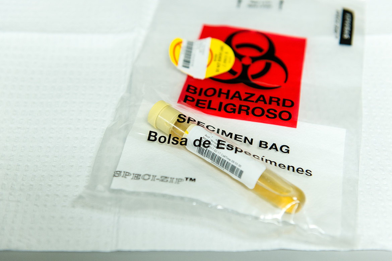 Liquid Gold: Pain Doctors Soak Up Profits By Screening Urine For