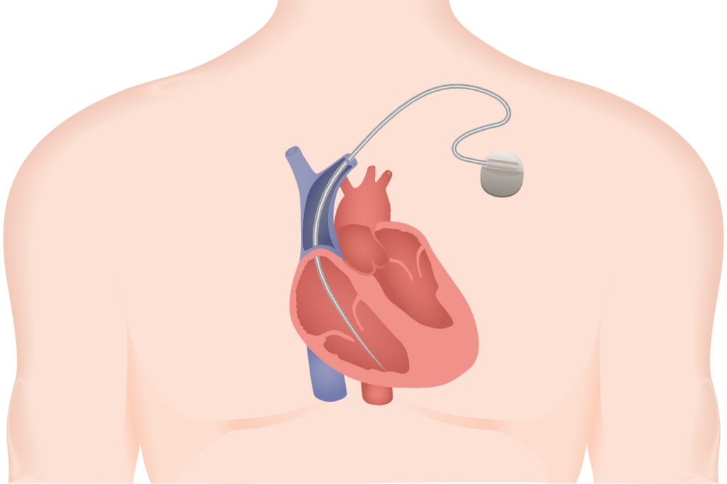 Hidden Reports Masked The Scope Of Widespread Harm From Faulty Heart Device