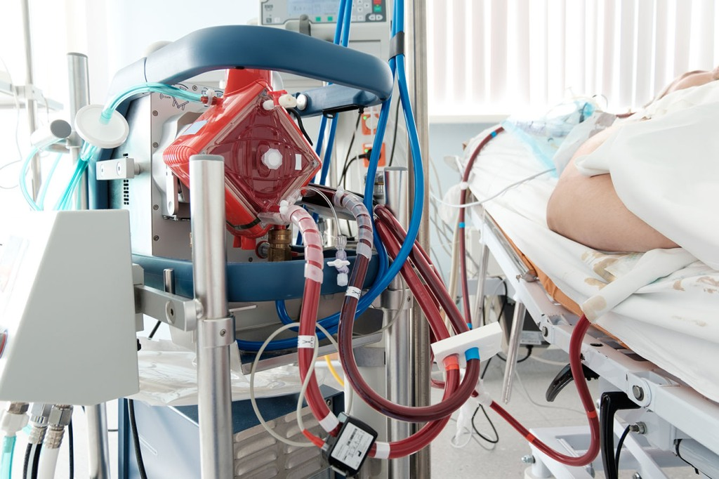 Miracle Machine Makes Heroic Rescues — And Leaves Patients In Limbo
