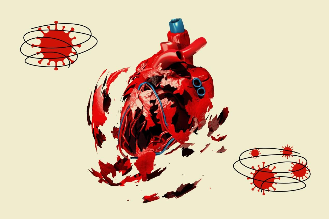 traduccion de ataque cardiaco en ingles